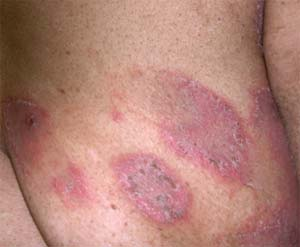 acute eczema Eczema Pictures