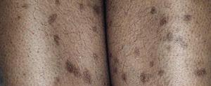 Skin Pigmentation Post-Inflammatory Hyperpigmentation - Skin Problems