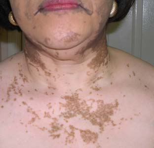 vitiligo on neck region